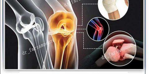 درمان آرتروز با ازن تراپی