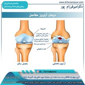 درمان آرتروز مفاصل
