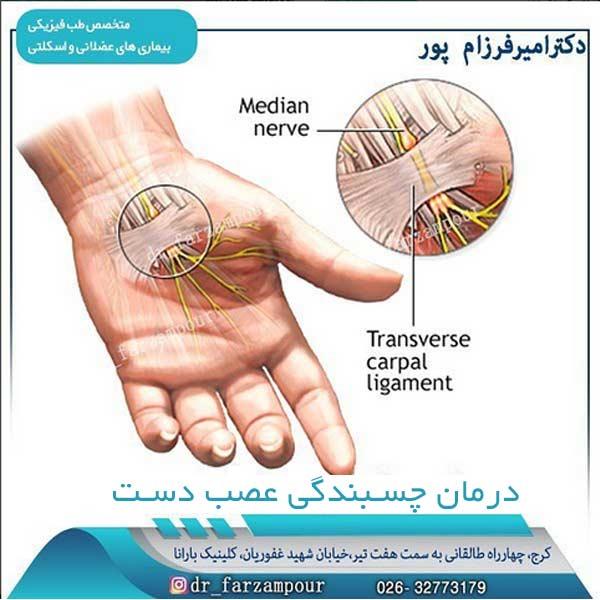 درمان چسبندگی عصب دست
