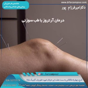 درمان آرتروز با طب سوزنی