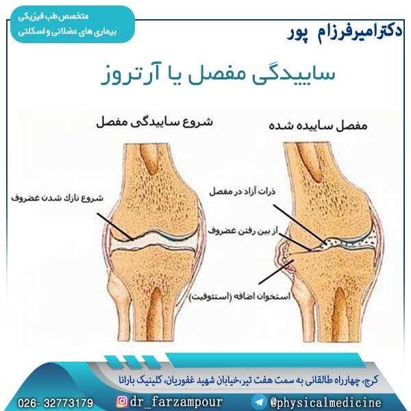 ساییدگی مفصل یا آرتروز