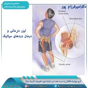 لیزر درمانی و درمان دردهای سیاتیک