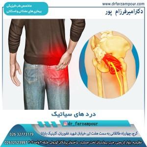 درد های سیاتیک