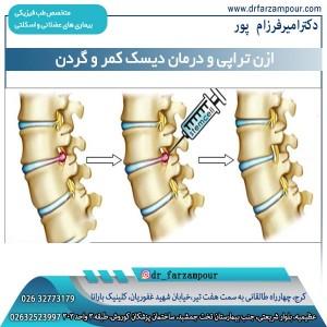 ازن تراپی و درمان دیسک کمر و گردن